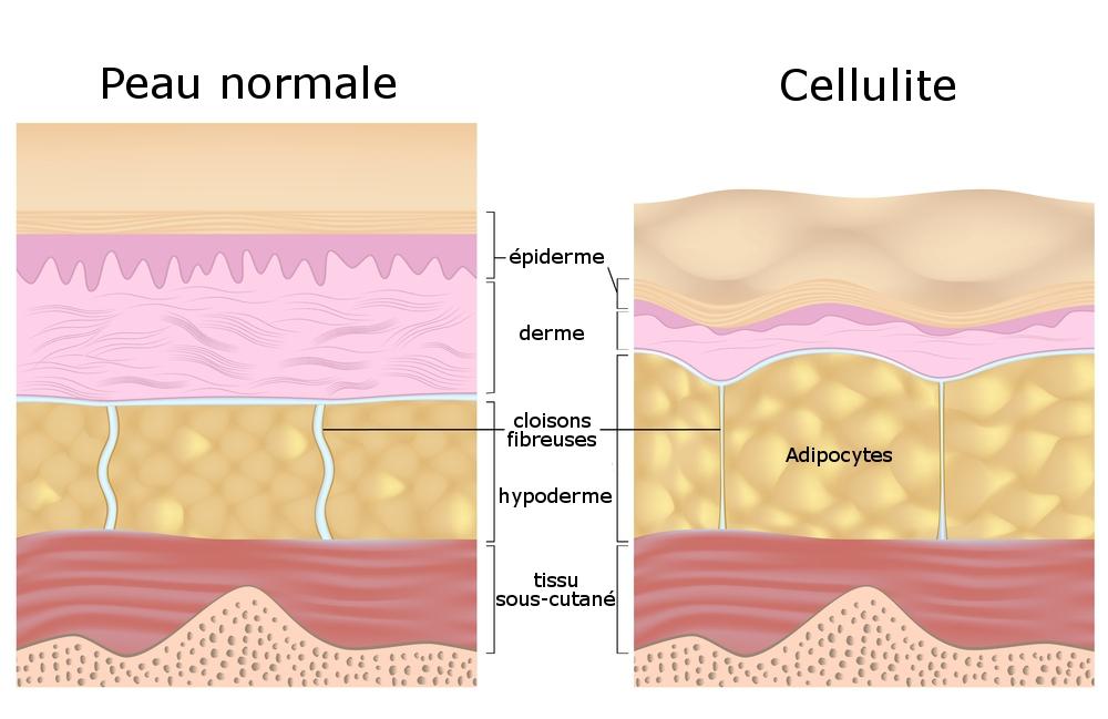 schéma de la cellulite