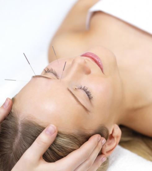 maigrir acupuncture